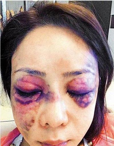 惨遭家暴的女星满是血迹 第五个被打的惨不忍睹